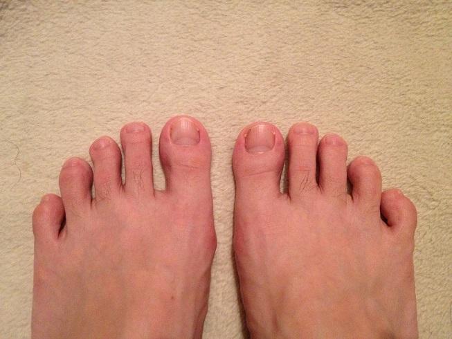 ランニングシューズ選びに重要!あなたの足型はエジプト型、ギリシャ型、スクエア型?