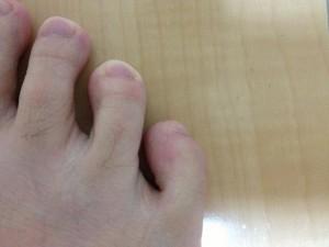 足の小指の拡大