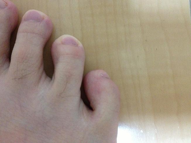 ランニングでできる足の指のマメ、水ぶくれ、血豆対策